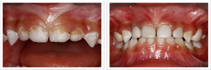 Thesis topics in pediatric dentistry